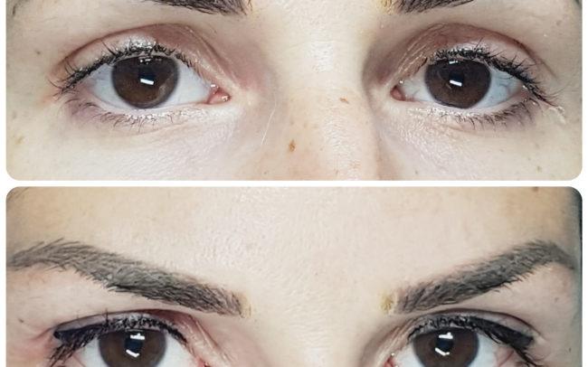 especialista micropigmentación Valencia